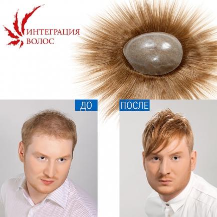 Безоперационное замещение волос