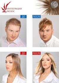 Интеграция волос - готовые волосяные импланты